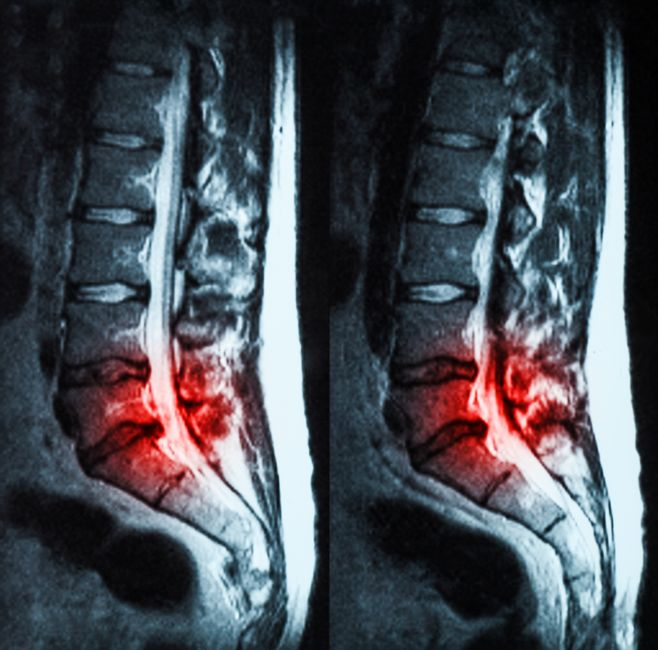 síntomas de una hernia lumbar